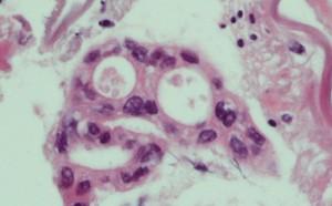 腺がん細胞が認められ膵がんと診断されました。